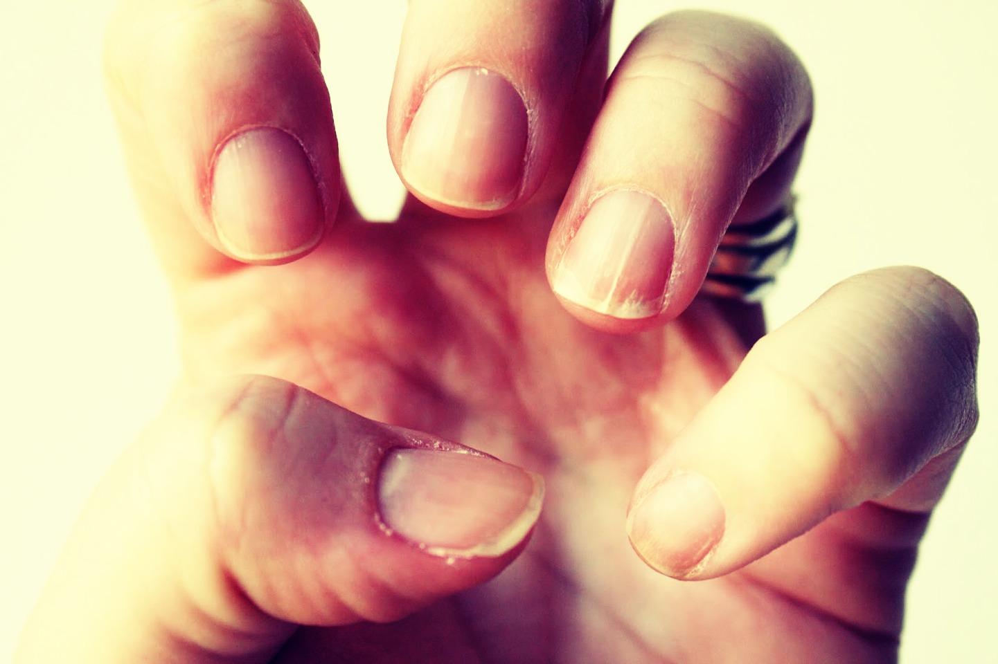 Формы ногтей при различных заболеваниях. Изменения размера и внешнего 69