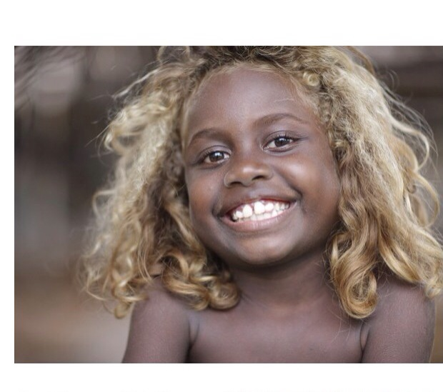 There Are African Americans Born With Beautiful Blonde