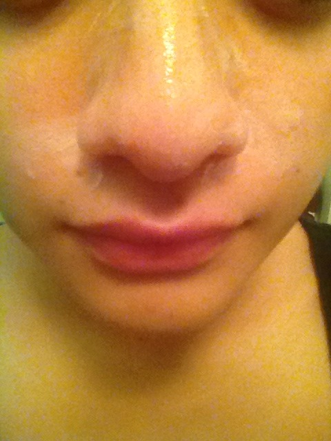 Easy Way To Remove Blackheads Musely