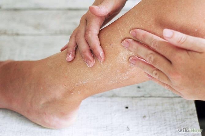 чешется кожа на коленном суставе