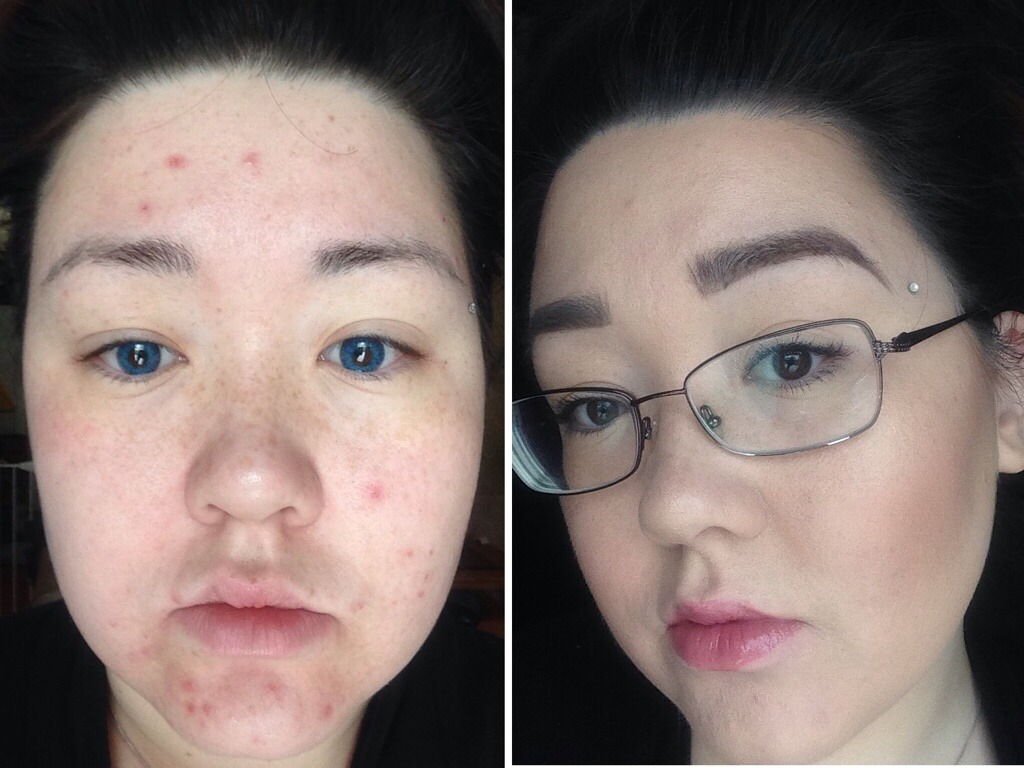 Hide Blemishes On Your Face