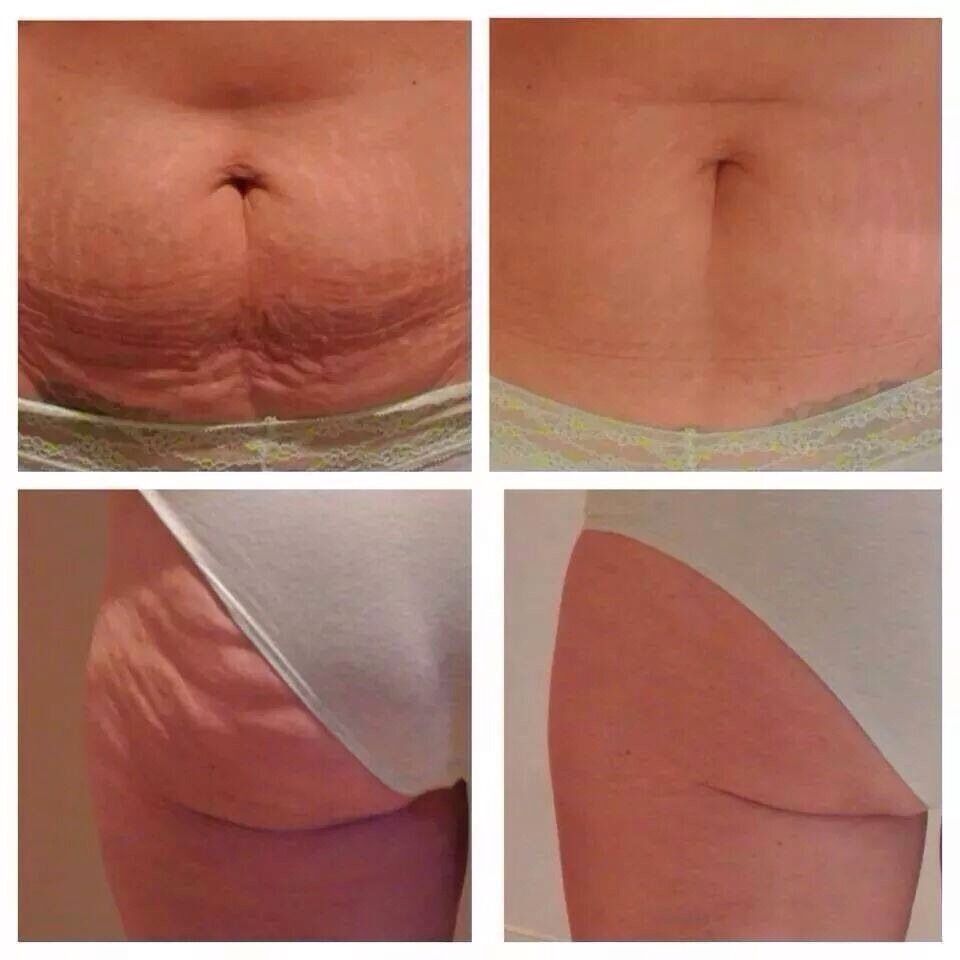how to get rid of saggy belly skin