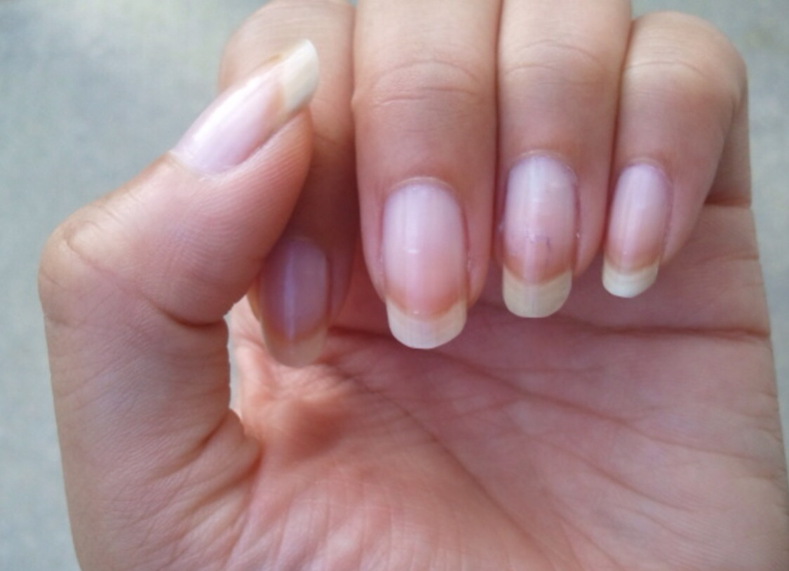 What Foods Can Help With Breaking Nails