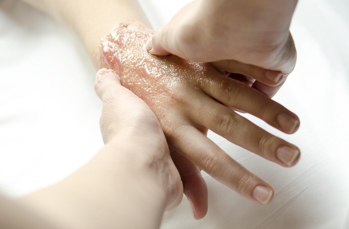 Сухая кожа рук: причины 3