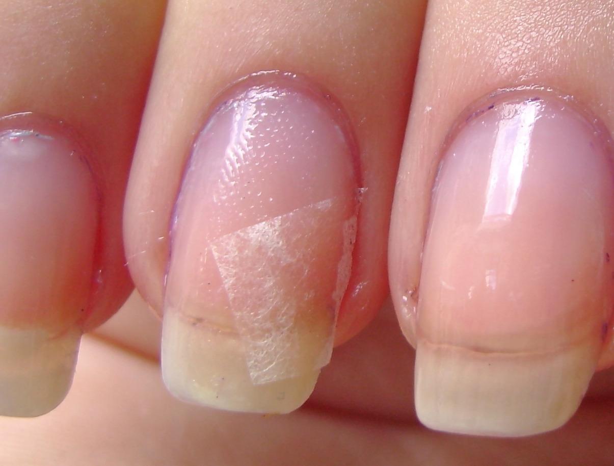 Что означает белая дуга на ногтях
