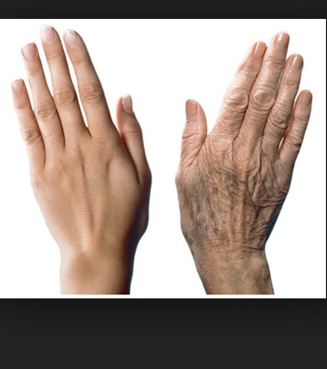 Your HANDS Are Giving Your Age Away! Treat Your Hands Like ...