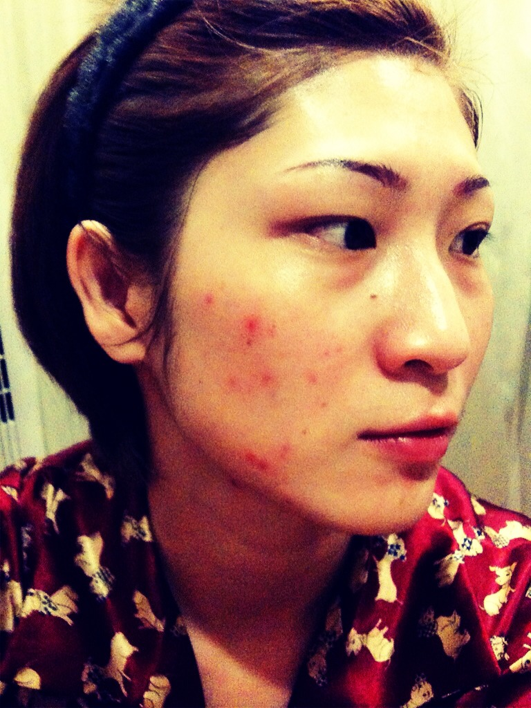 how to get rid of white pimples overnight