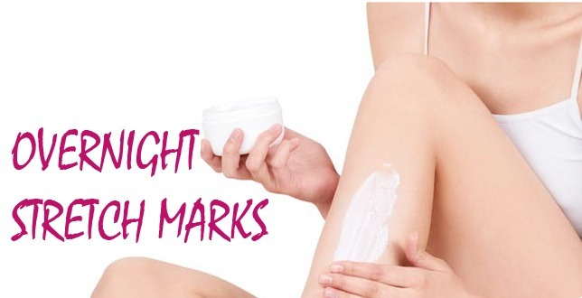 Stretch Marks: Common Causes and How To Get Rid of Them
