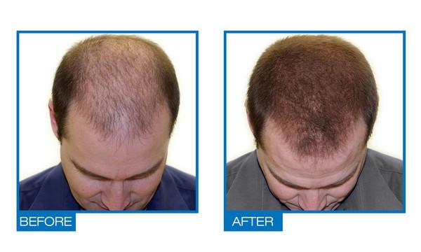 saw palmetto and hair loss