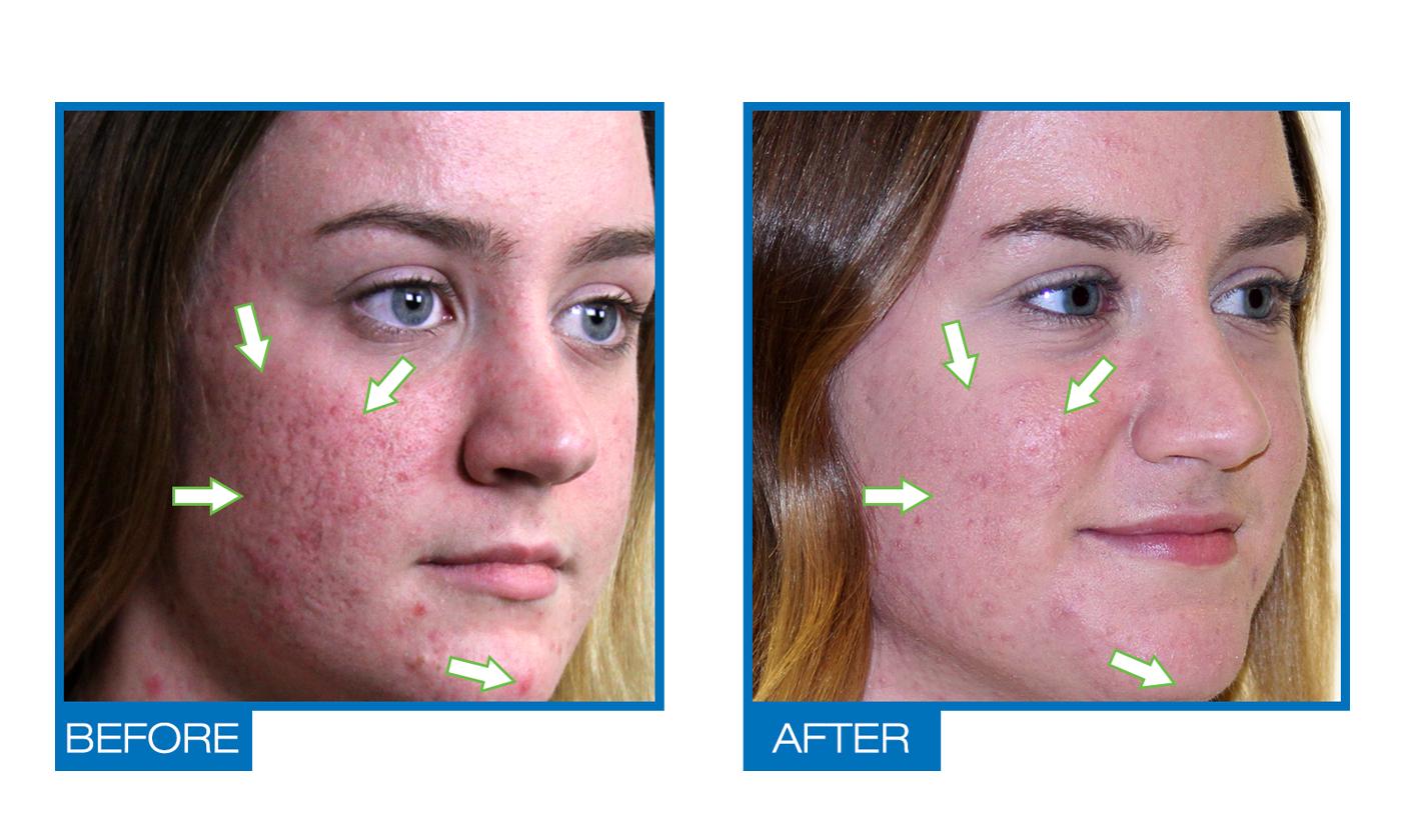 acne dark spot remover