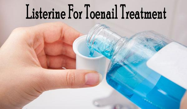 Listerine apart from curing mouth related issues is also found to be effective in healing toenail fungus. And here we get to know the truth and myth behind this remedy.