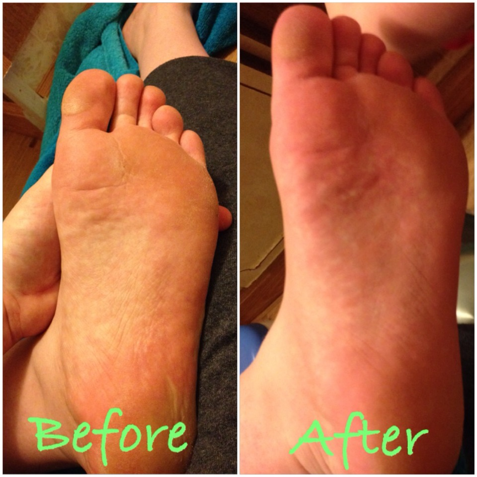how to get dead skin off feet without listerine