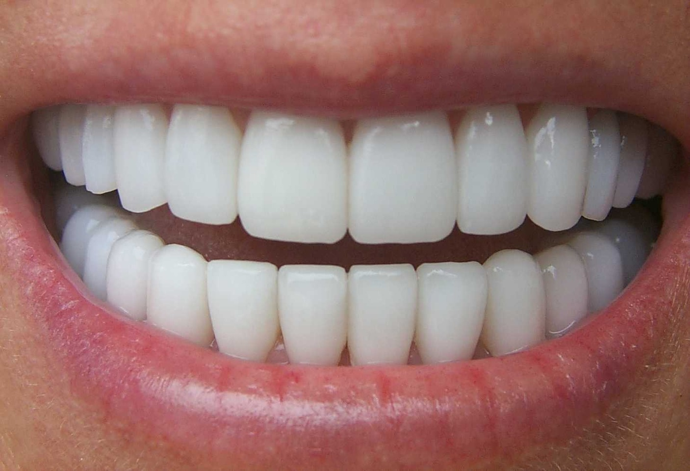 Apply Vaseline to your teeth to prevent lipstick sticking to your teeth