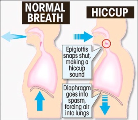 Hiccups are one of the most annoying things and they strike randomly. Try this home remedy next time they suddenly hit.