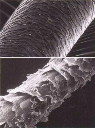 This a microscopic picture of ur hair the top is normal hair with normal everyday damage most hair will look like this even non-chemically treated unless u don't do anything to damage ur hair no irons or blow dryer the bottom is hair that has been severely damaged some pieces have even broken off...