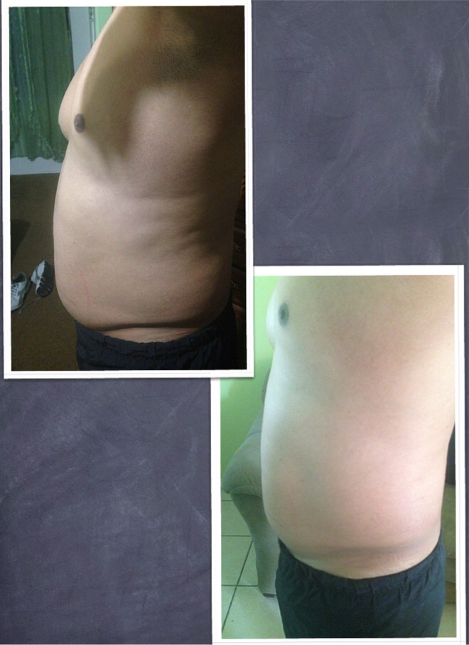 Real results with only 1 wrap..get your 1 box of 4 wraps for the special of $59