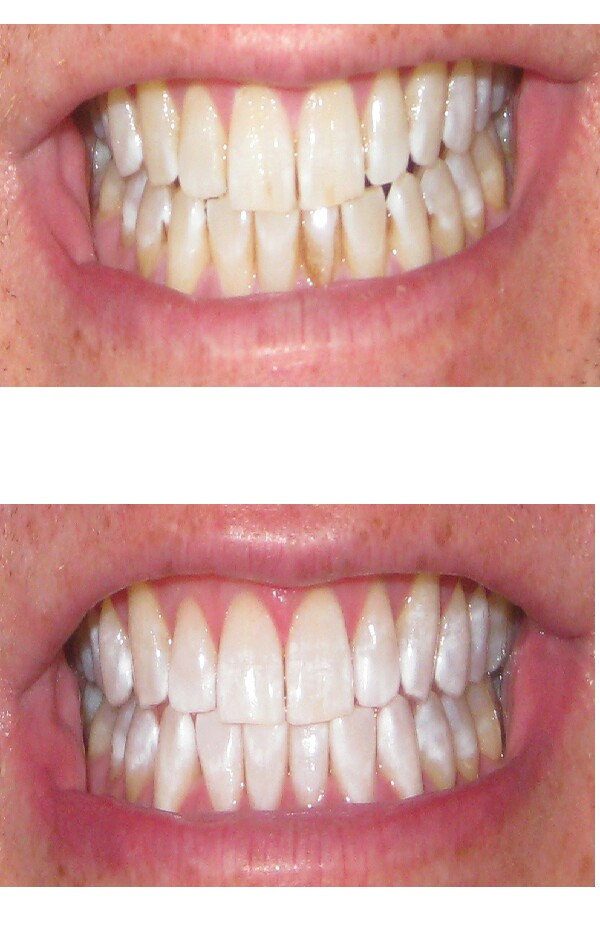 bicarbonate of soda great for   whitening teeth