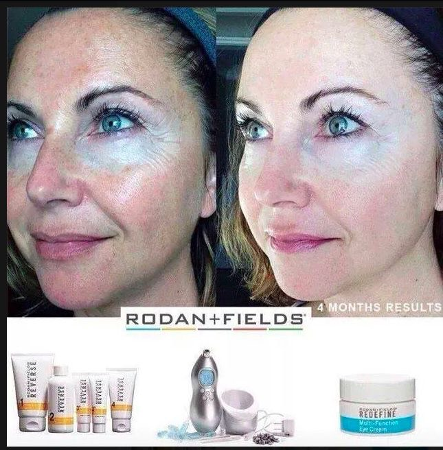 Life Changing Results Rodan Fields By Crystal Sokolowski Musely