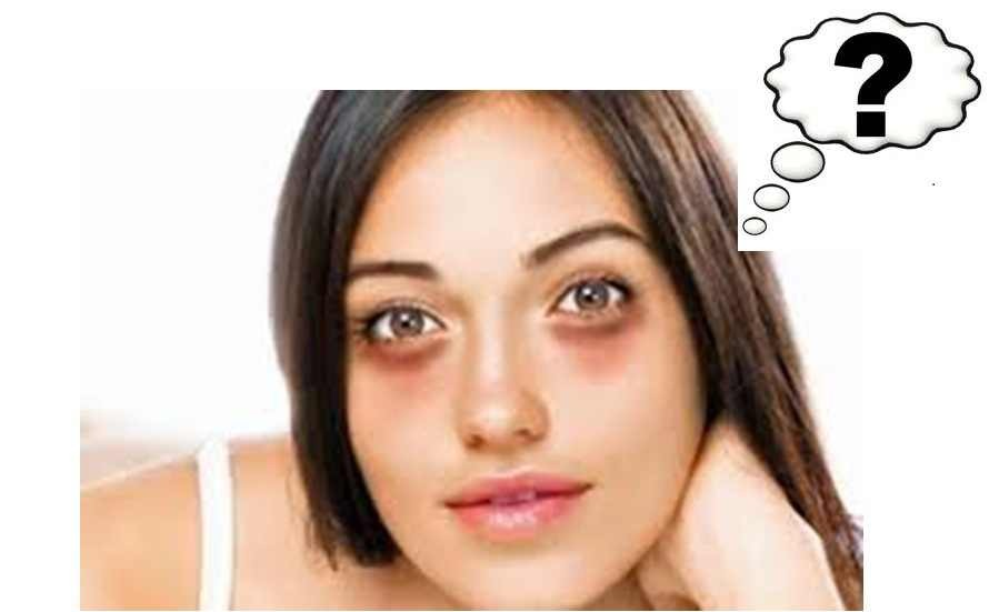 1. You can put a frozen spoon under your eye. 2. Of curse get at least 8 hours of sleep 3. Eat well aka. Healthy  4. Cucumber  5. Raw potato ( under eye )  6. Lemon juice  Just put them under your eyes for at least 10 to 15 mins. Do it for a week and in a month you'll see your results.