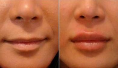 get amazing lip results without lip injections!
