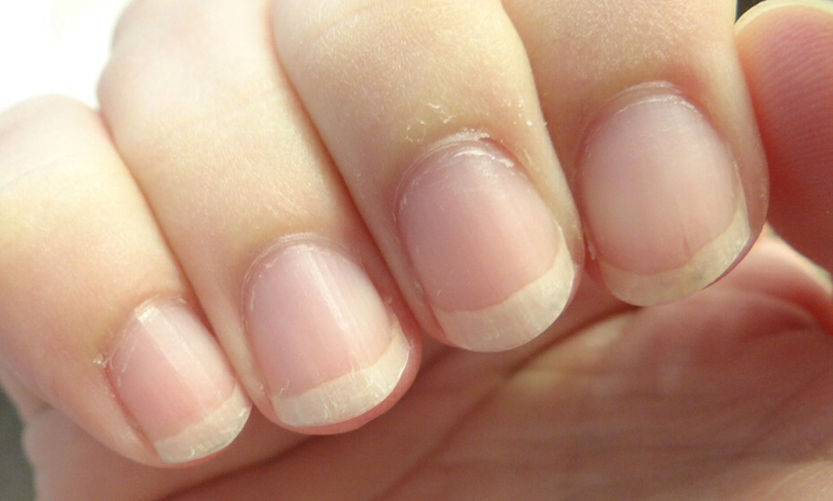 Cuticles: rub coconut oil, olive oil or Vaseline on them to promote healthy nails.
