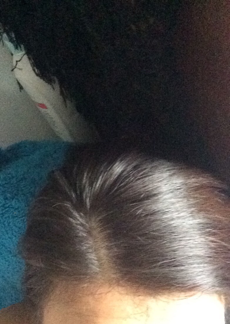 This my hair currently, as you can see there is no dandruff