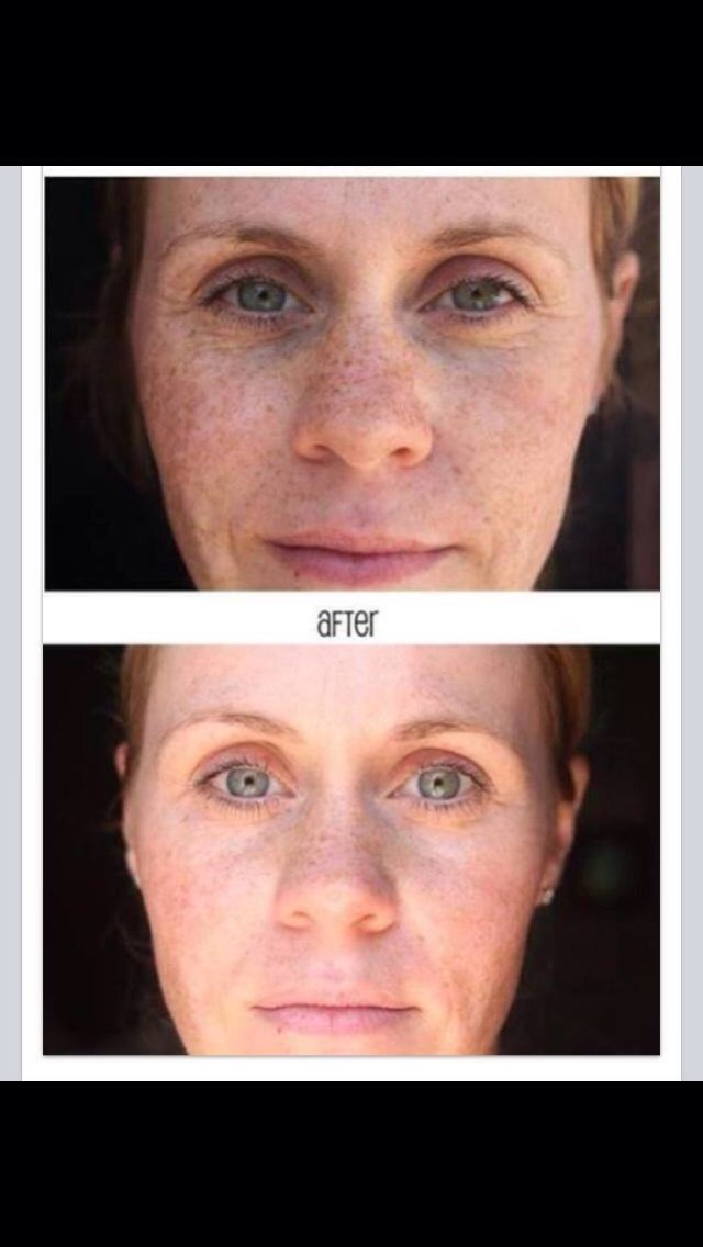 Susan K. loves the results she has gotten from using Reverse Regimen. These amazing results are only after 3 (YES 3) WEEKS!!!