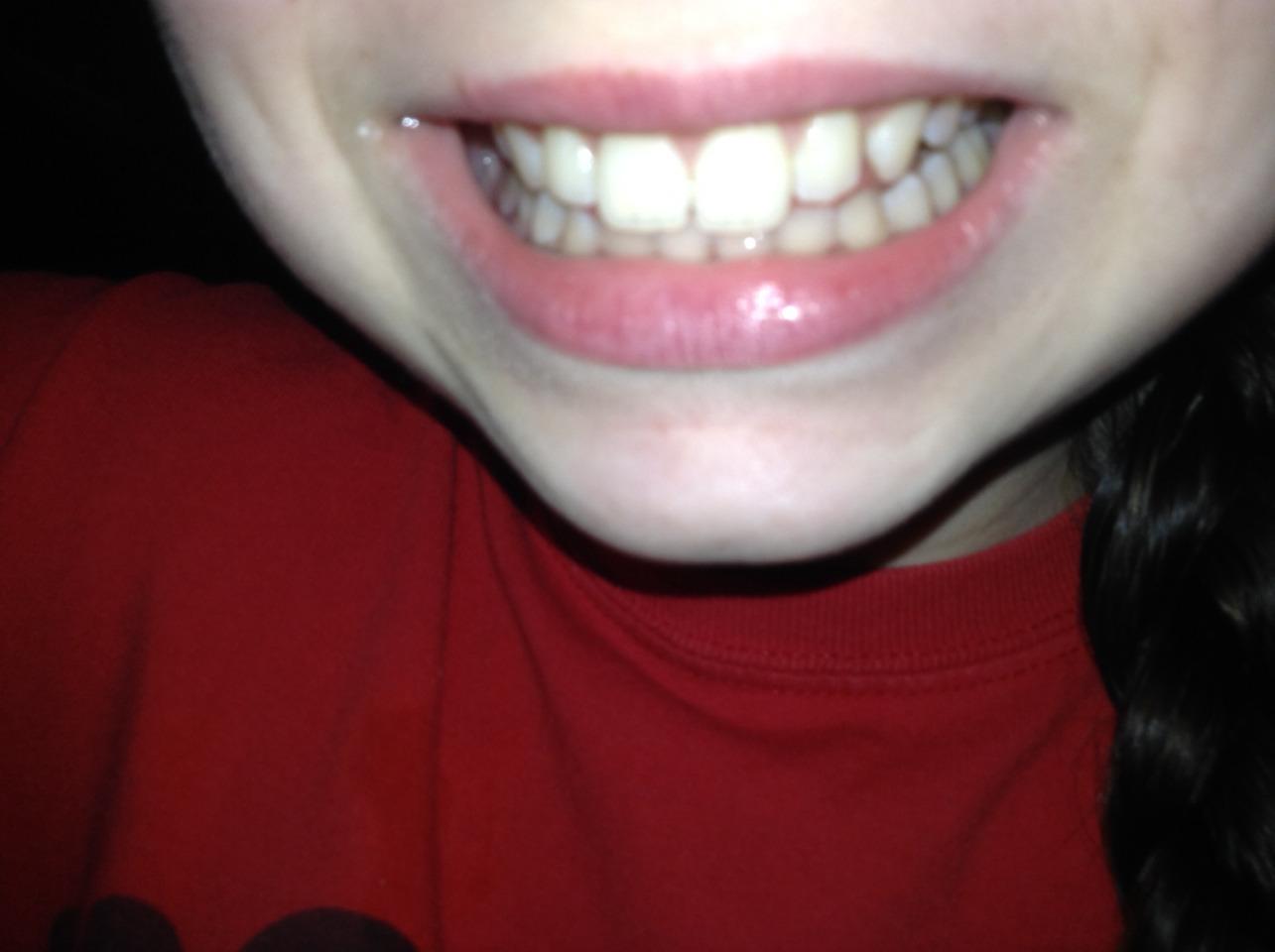 Want white teeth like this?