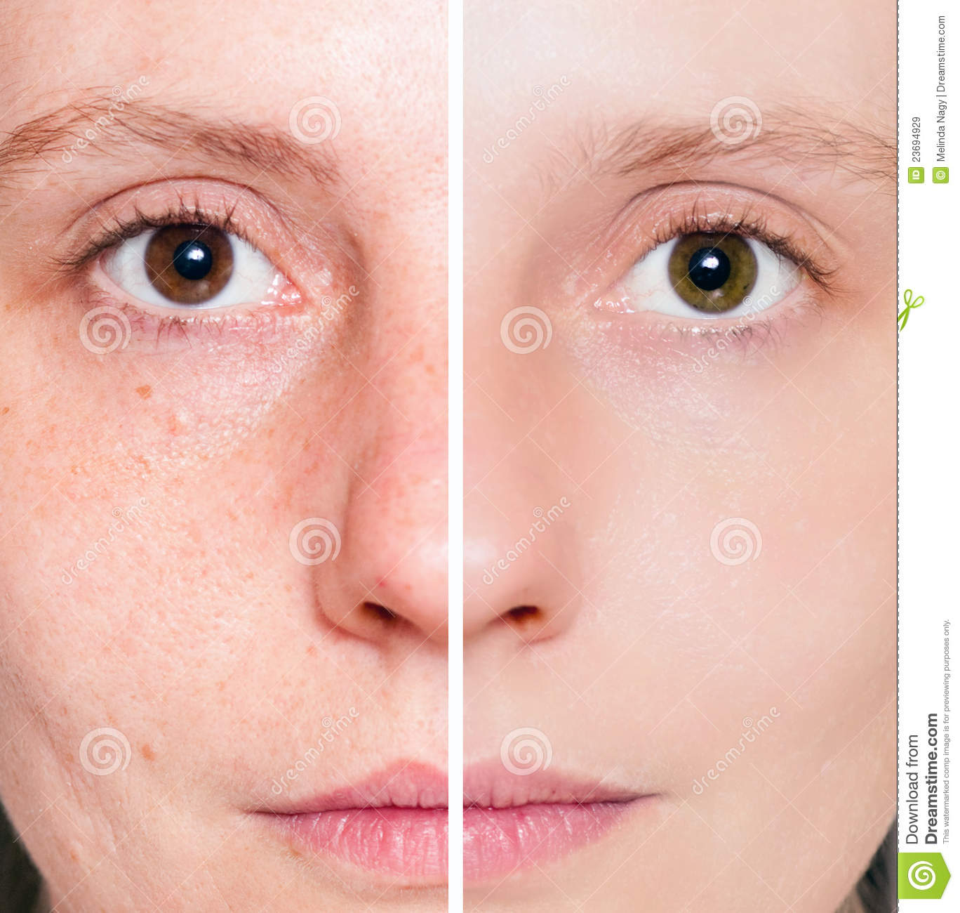 your skin will be more clear than ever and you will have more confidence!