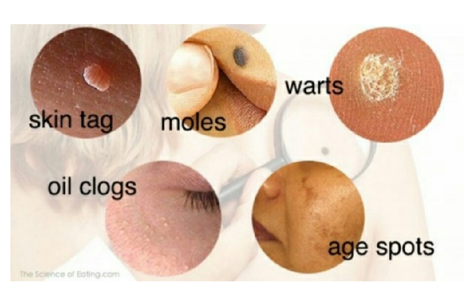 Can You Get Rid Of Skin Tags On Dogs