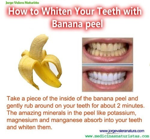 Beauty tip of whiten teeth. Please like 👍👍👍👍👍👍👍🍌