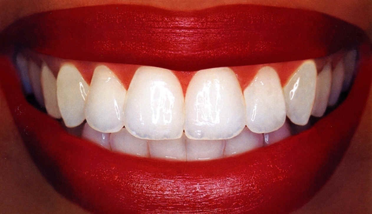Brush your teeth without toothpaste just water the first go round. Spit as usual. Then go back and brush your teeth with a whitening toothpaste afterwards. This way, all the plaque and sugar etc is already washed away so the toothpaste gets the best buffer and shine on your teeth possible.