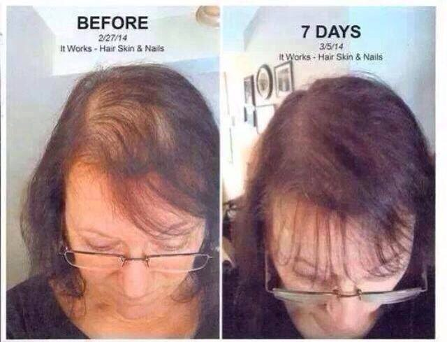 Don't let your hair thin out!