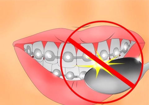 Try not to hit your teeth on hard surfaces such as cups, forks, etc. As your teeth are very sensitive. Avoid biting down too hard.