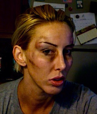 This is me and I was a victim of domestic violence for severalyears before I finally realized the only way it would end was with me in the morgue if I didn't leave him.