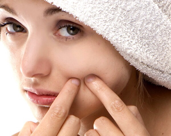 Popping a zit could push infected material even further into your skin. This leads to scarring, redness and swelling.