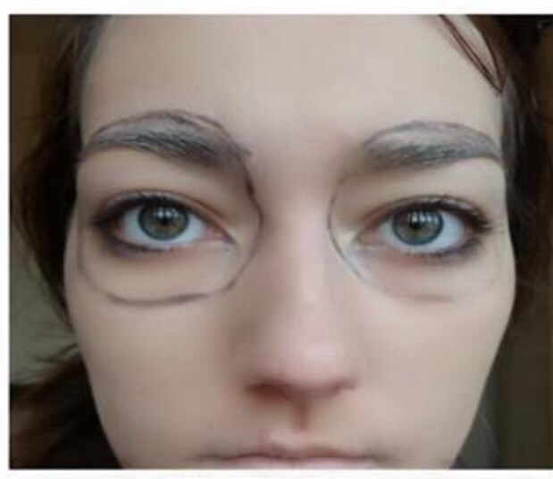 Step 1. -Apply the foundation/concealer to your face the same way you would with normal makeup -Next using the black eyeliner pencil draw big circles around your eyes (be sure to go around your eyebrows aswell)