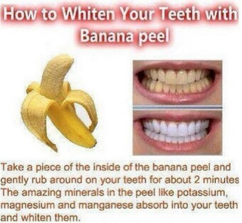 Teeth whitening. Quick and easy.