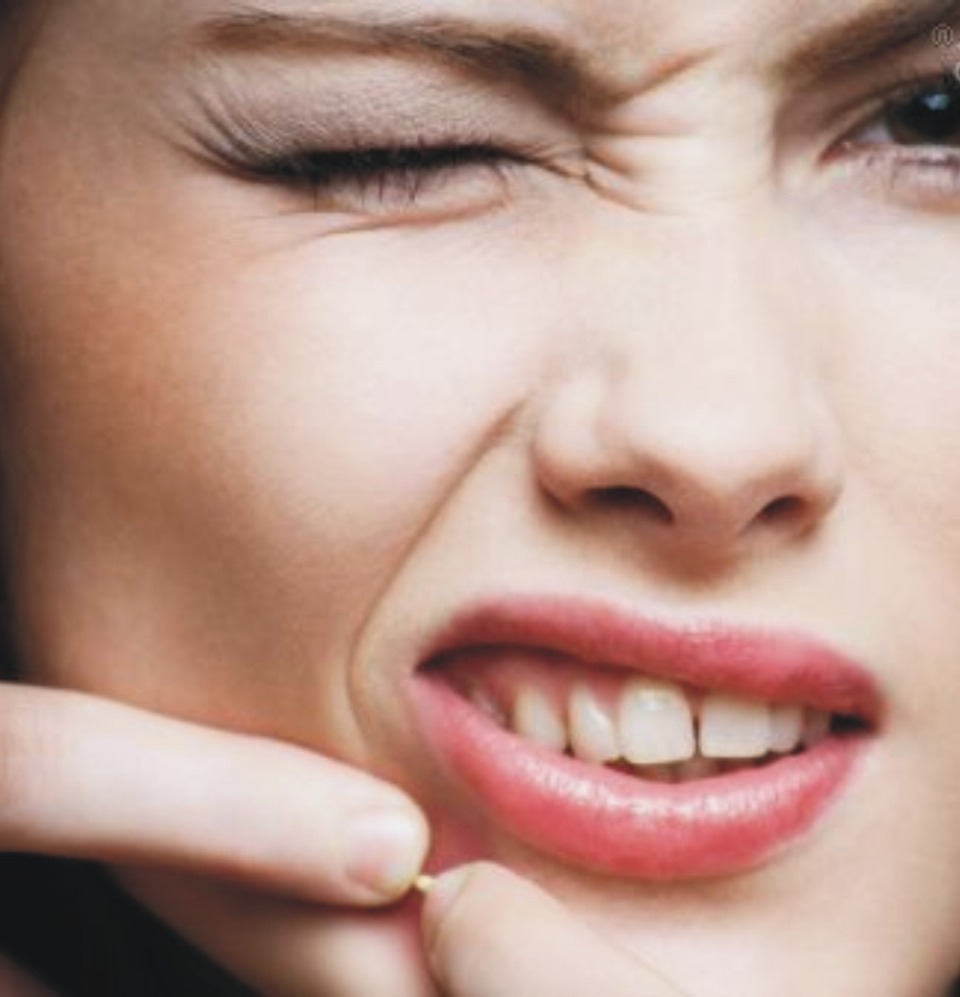 Out of acne cream? Crush a few Advil or aspirin and mix with water to create a paste (or open an Advil gel capsule), and leave the paste or gel on problem spots overnight. Add a Band-Aid to keep it in place.
