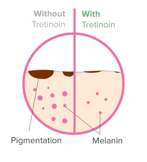 "What are tretinoin's side effects The effect of increased skin cell turnover can be irritation and flaking. For this reason, many people stop using tretinoin after a couple of days or weeks—and then think that it didn't work. It is important to realize that although tretinoin starts working hard on your skin immediately, results won't be visible for several weeks and users must be patient with the side effects to start seeing signs of aging reverse.   The most common side effect of tretinoin use is a warm, stinging sensation in the skin directly after the medication is applied. This is often accompanied by dry and itchy skin, skin redness, mild scaling and a slight burning sensation.  Because tretinoin works by increasing the speed of your skin cell turnover to bring new skin to the surface, this can sometimes lead to what is known as a ""purge period"". During this time you may experience breakouts that can last anywhere from 2-6 weeks.  It's important to remember that acne trigged while using tretinoin would have developed on its own regardless, and that the tretinoin is simply speeding it up. This side effect can be managed by easing slowly into the treatment, avoiding direct sunlight, and staying consistent with the process.  Tretinoin's side effects can be greatly minimized with proper use (e.g. appropriate strength level for your skin types, pairing tretinoin with compatible ingredients) and are typically temporary for the first 2-4 weeks as your skin learns to tolerate. Many of these minor side effects resolve on their own, while others are easily fixed by using a moisturizer or other skincare products to counter the dryness produced by tretinoin."