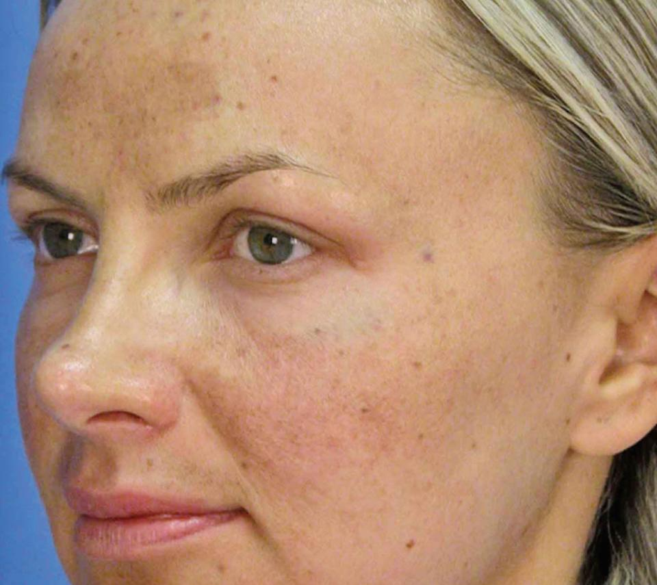 Sleeping with makeup on can actually age your skin by six days. This doesn't seem many days but as you sleep in it more and more times, more and more days are added to ageing your skin. This is why it is so important to make sure it is all removed.