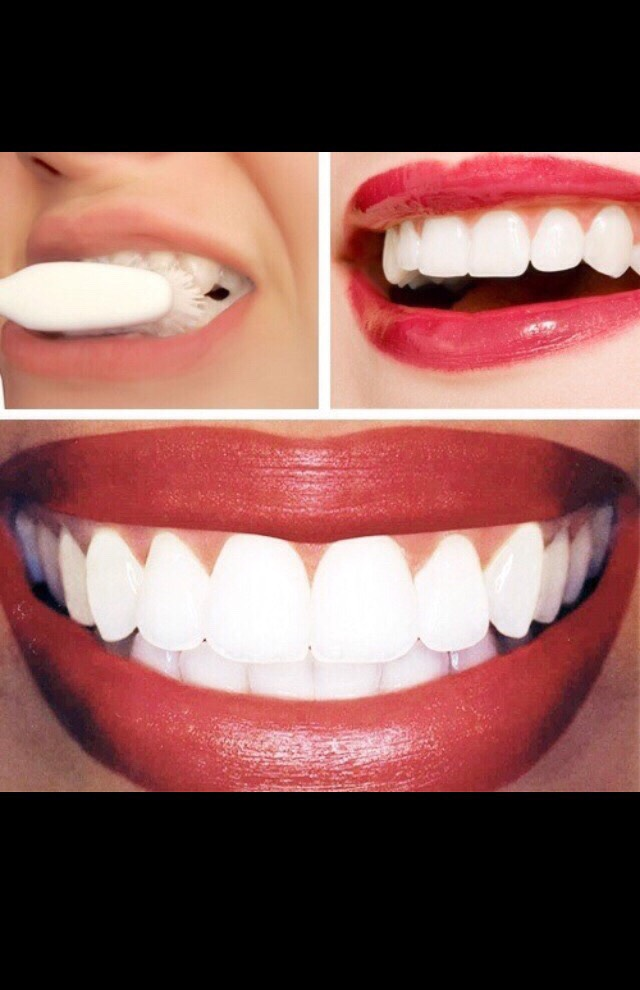 Dip a Qtip into the lemon juice and baking soda solution and apply it to your teeth. Let the lemon and baking soda solution sit on your teeth for around a one minute. Brush your teeth with your regular toothpaste to remove the acid. Resulting with whiter teeth in first treatment!