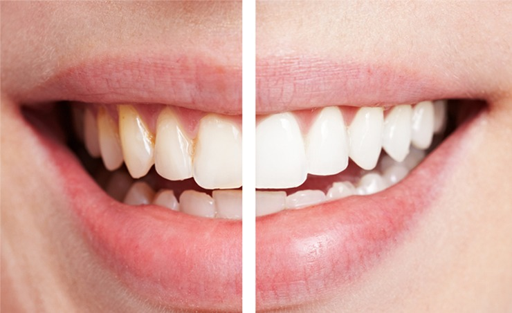 Mix baking soda and lemon juice/water and brush your teeth every night! This shows what a difference 3 days can make !