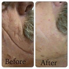 Not just for women. Amazing results on men aswell