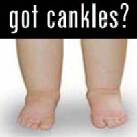 This is how to get rid of cankles in 9 fast, easy exercises! My tip is adapted from this article http://www.stylecraze.com/articles/effective-exercises-to-get-rid-of-cankles/