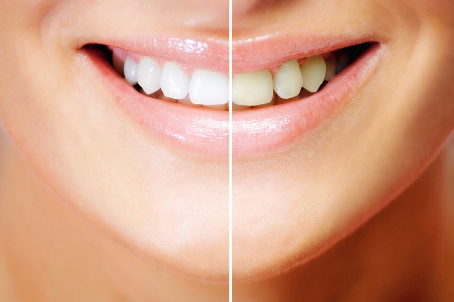 How To Whiten Teeth Use Baking Soda And Lemon Juice Make A Paste