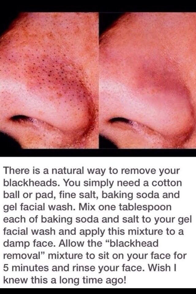 Use 1tbs baking soda, 1tbs salt, and any gel face wash of your choice! mix and leave on for five minutes.