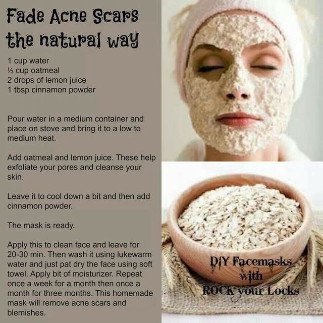 Yes this actually works .! I have tried it and you should too.. This is the best for acne free skin😍❤️