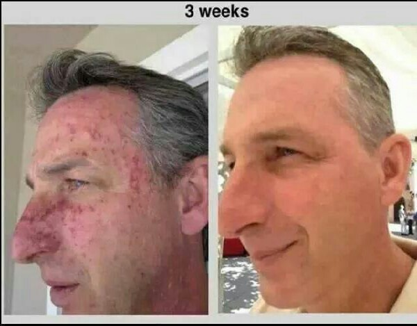 even dark spots...and men can use it too!