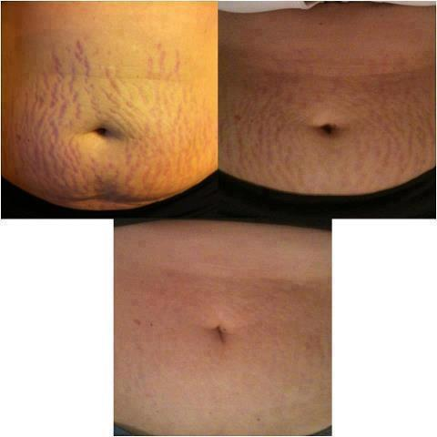 natural way to reduce stretch marks!! by Ashley Patchett